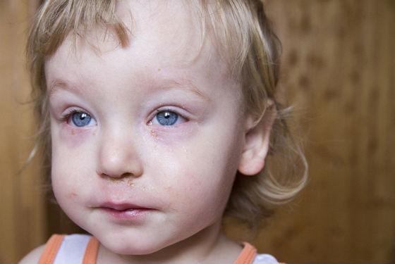 Аллергические реакции способны привести к отеку носовых пазух