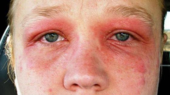Сльная аллергическая реакция на косметические средства