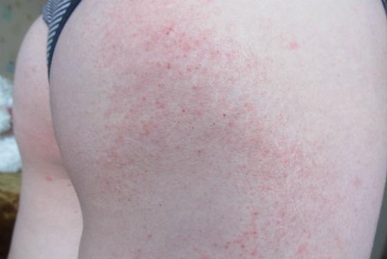 Контактная аллергия на ягодицах