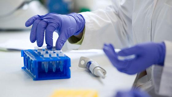 Анализ крови на обнаружение воспалительных процессов