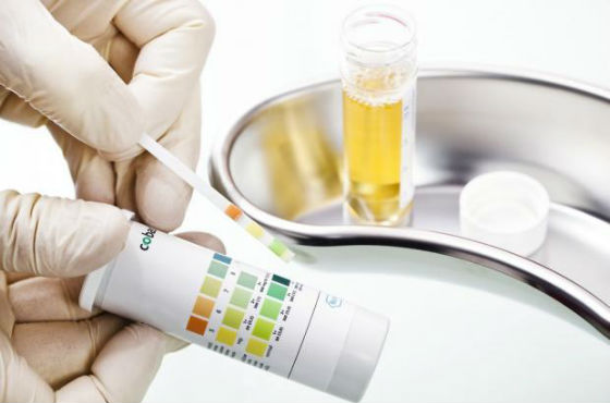 Анализ мочи на содержание гормонов, вырабатываемых надпочечниками
