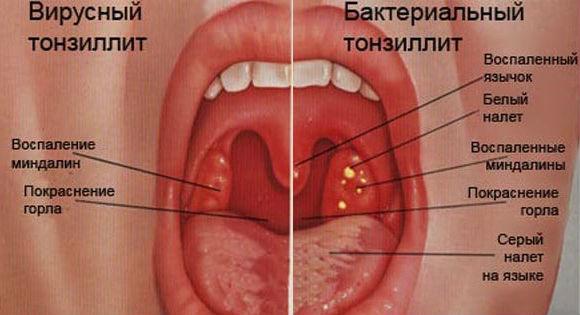 Основные отличия вирусного и бактериального тонзиллита