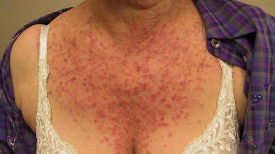 Гиперкератоз на груди