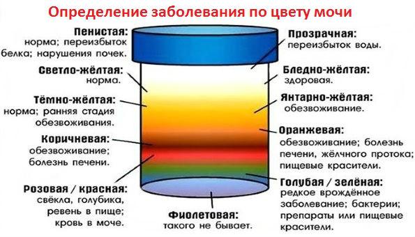 Как определить заболевание по цвету мочи