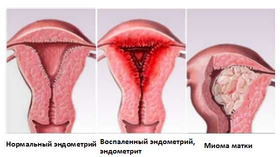 Что такое воспаление слизистой оболочки матки