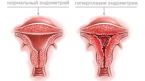 Чрезмерное разрастание слизистой матки