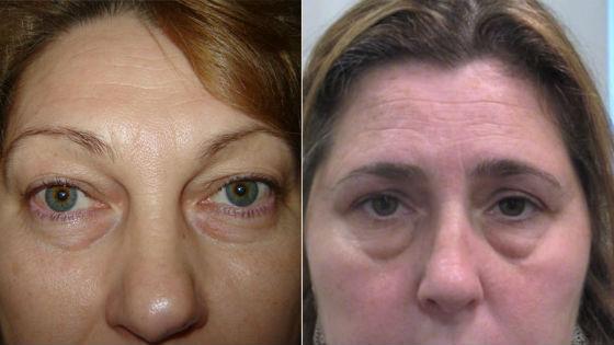 Как выглядят скопления подкожного жира на лице