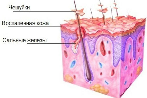 Как образуются чешуйки на коже головы