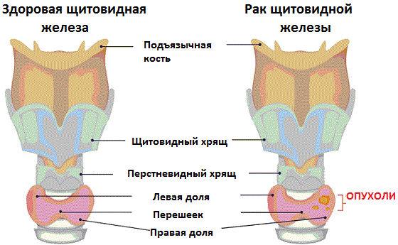 Как выглядит раковая опухоль в щитовидке