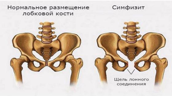 Как выглядит расхождение костей тазового дна