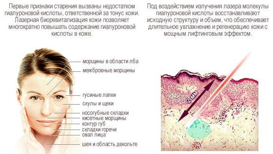 Как лазер действует на кожу