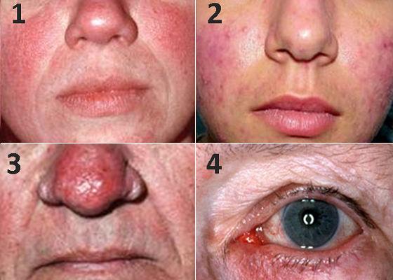Формы проявления кожных высыпаний при наличии демодекса
