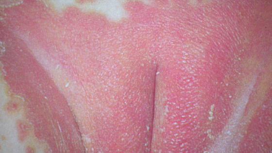 Образование корочек, воспаление кожи
