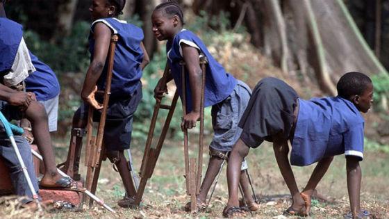 Дети с атрофированными нижними конечностями после эпидемии полиовируса