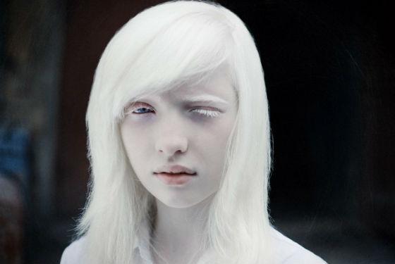 Девочка альбинос с очень светлой кожей