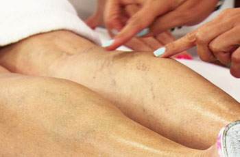 Диагностика симптомов варикозного расширения вен на ногах