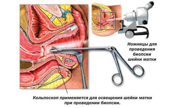 Проведение биопсии для выявления дисплазии