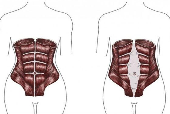 Как выглядит расхождение мышц живота