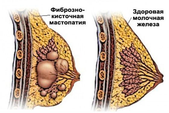 Как выглядят фиброзные узлы в женской груди