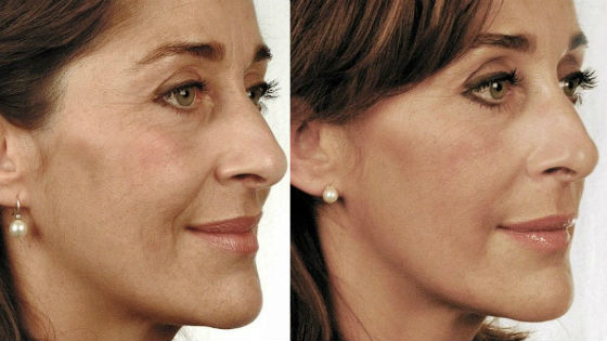 До и после проведения омолаживающих процедур