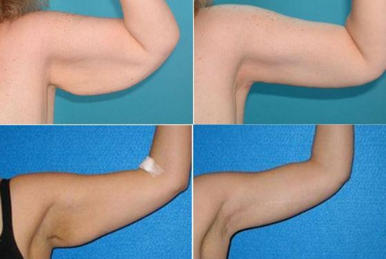 Руки до и после проведения пластики плечевой части