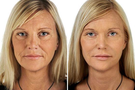 Состояние кожи до и после омолаживающей процедуры лазером