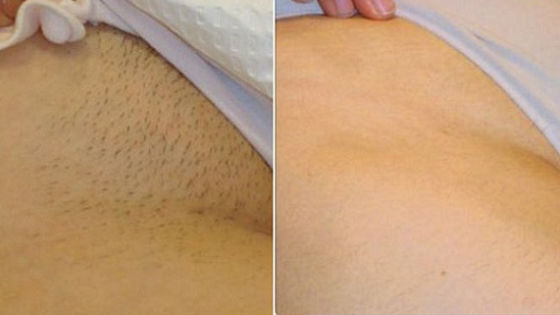 До и после удаления волос лазером в интимной зоне
