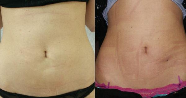 До и после проведения процедуры по коррекции фигуры лазером