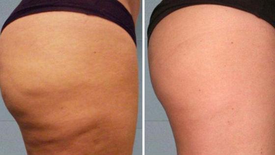Состояние кожи после массажа с применением вакуума