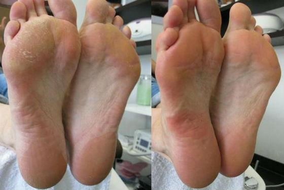 Ступни до и после использования средства удаления огрубевшей кожи
