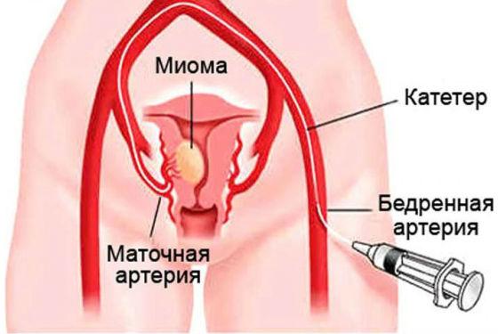 Лечение миоматозных узлов методом эмболизации маточных артерий