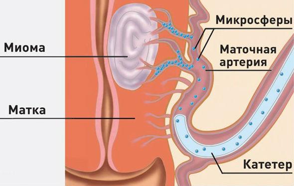 Малоинвазивный метод лечения миомы эмболизация маточных артерий