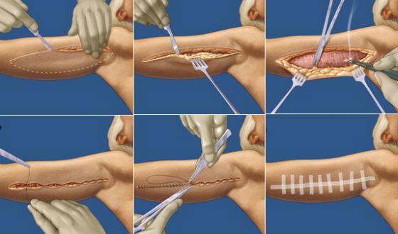 Этапы проведения пластики верхней части рук