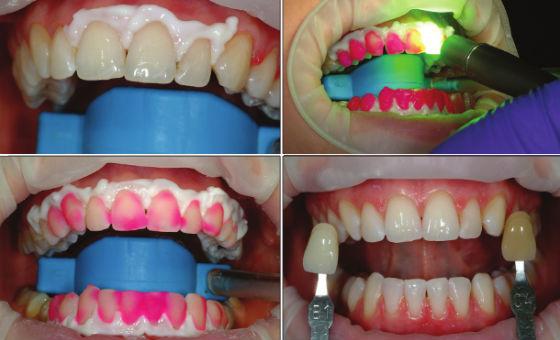 Этапы проведения очищения зубной эмали лазером