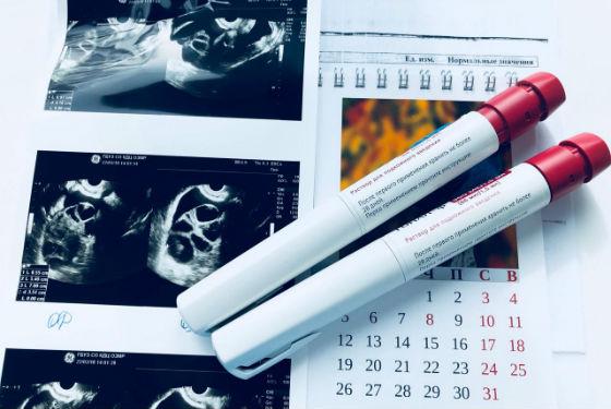 Фолликулометрия для контроля созревания яйцеклетки