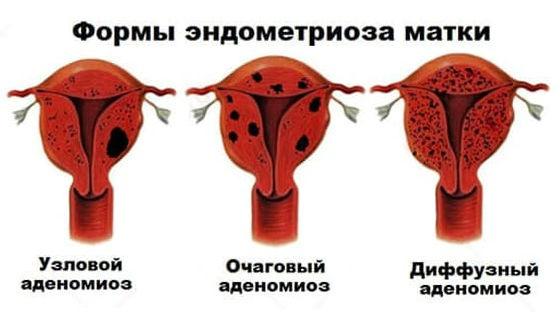 Формы аденомиоза по степени разрастания эндометрия