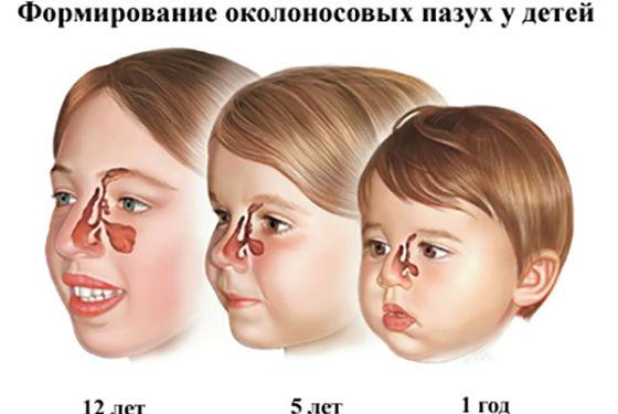 Развитие гайморовых пазух в детском возрасте