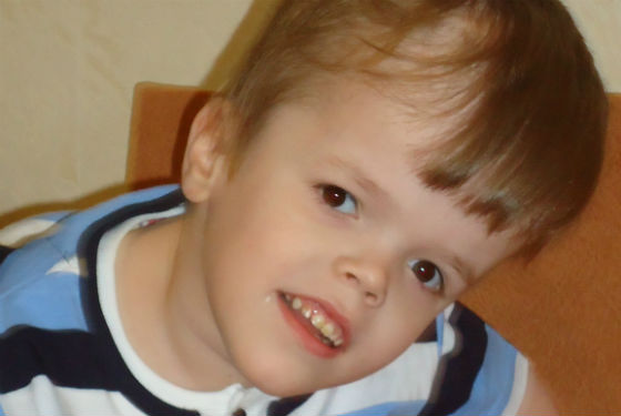 Водянка головного мозга у ребенка более старшего возраста
