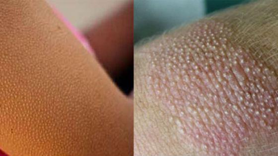 Гиперкератоз на руках и коленях