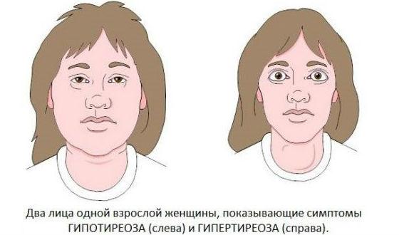Гипотиреоз и гипертиреоз на примере лица одной женщины