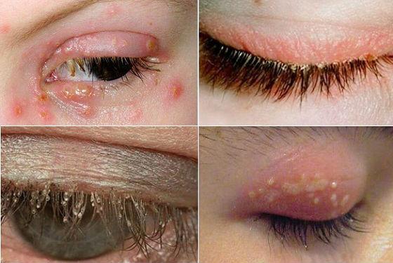 Проявления демодекса в области глаз