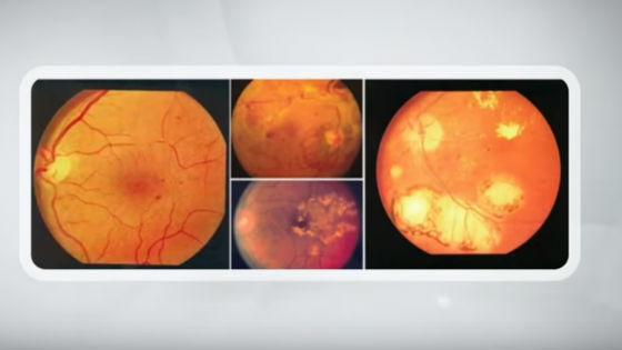 Ангиография глазного дна