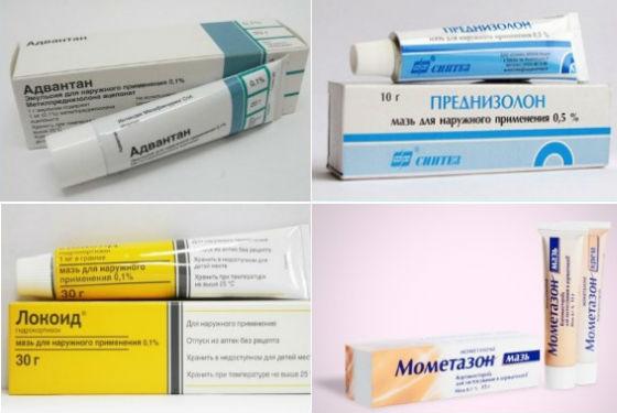 Кортикостероиды для лечения аллергических реакций