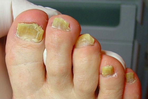 Грибковое поражение ногтевой пластины на ногах