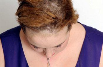 Признаки грибка головы 7
