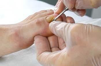 Как сделать чтобы ногти на ногах выросли 836