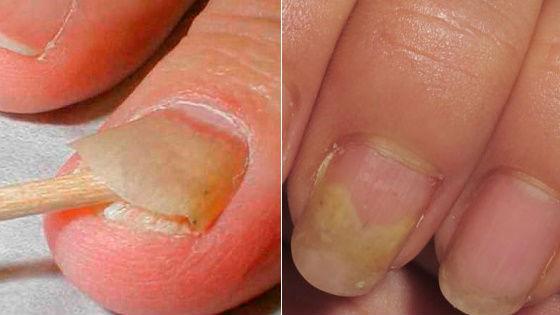 Грибковое поражение ногтевых пластин на руках и ногах