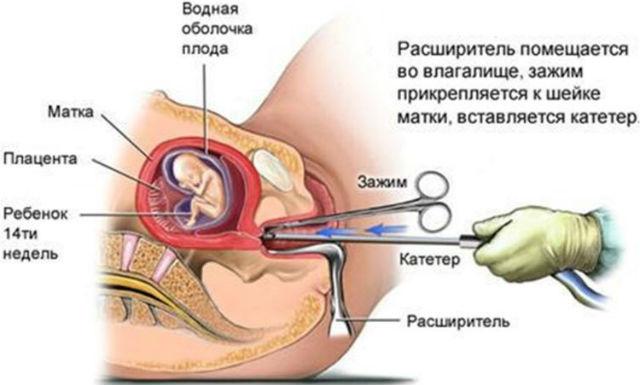 Инструментальный аборт, или выскабливание
