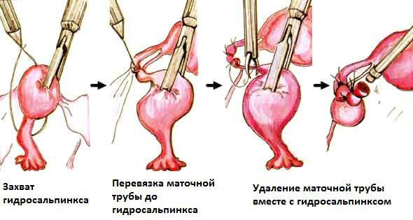 Как проводят иссечение маточной трубы