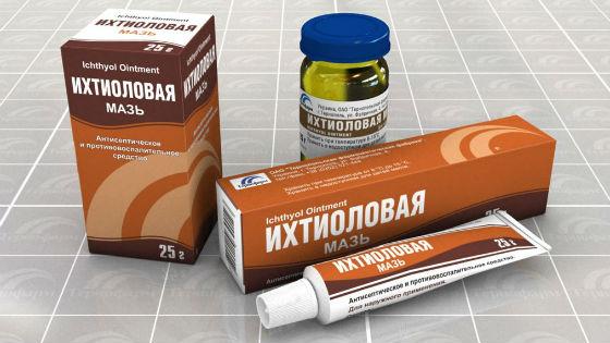 Ихтиоловая мазь для лечения варикозного расширения